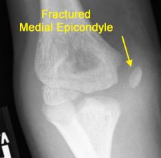 OrthoKids - Elbow Fractures