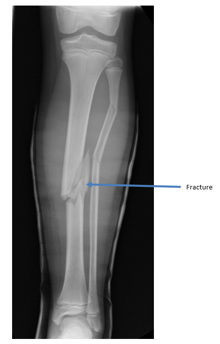 Orthokids Tibial Shaft Fractures